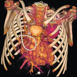 Thoracic Imaging: Today and Tomorrow