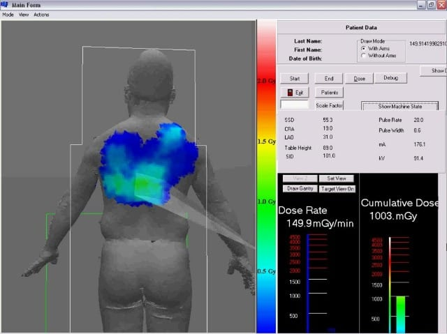Toshiba Real-Time Dose Reduction on Display at SIR