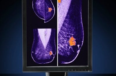 LED Display Designed for Mammography Reads