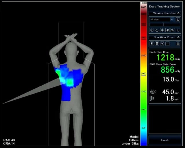 Toshiba Announces Enhancements to Dose Tracking System