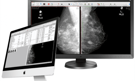 Aycan Introduces Mammography Workstation