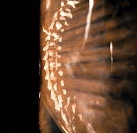 Researchers ID Better X-Ray Classification for Adult Idiopathic Scoliosis