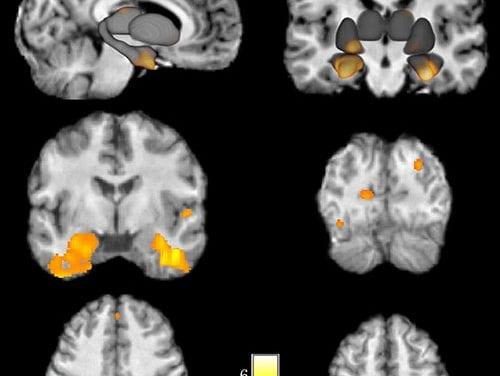 Study: Parental Absence Affects Brain Development in Children