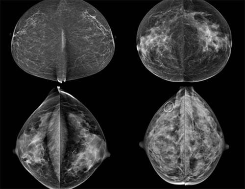 Study: Breast Density Alone Not Cancer Risk Factor