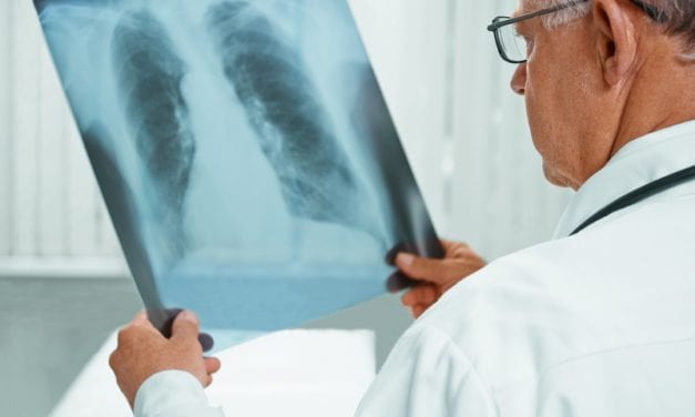 Machine Learning Can Predict Heart Failure from a Single X-Ray