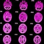 Brain Inflammation Is a Significant Factor in More Types of Dementia Than Previously Thought