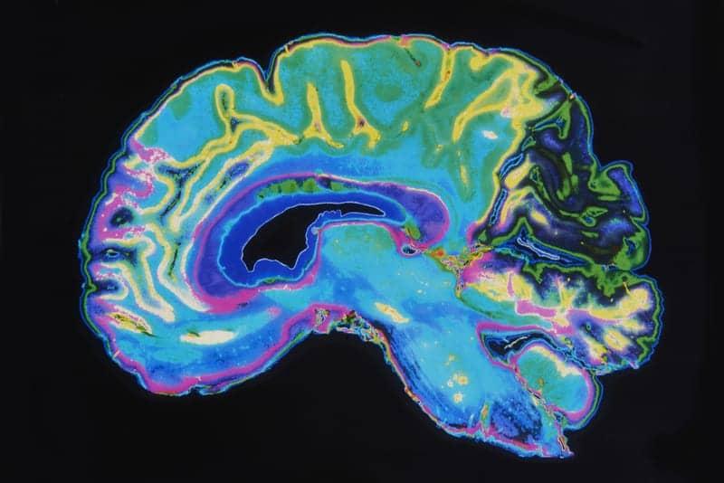 MRI Scans Reveal How the Brain Handles Fatigue