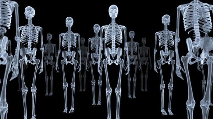 X-Ray 'Ghost Images' Could Cut Radiation Doses