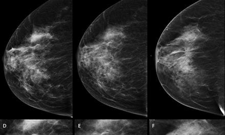 More Breast Cancers Found with Combined Digital Screening