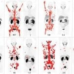 PSMA PET Imaging of Theranostic for Advanced Prostate Cancer SNMMI's Image of the Year