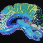 Largest Known Brain Imaging Study Identifies Drivers of Brain Aging