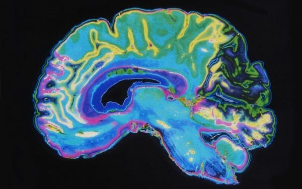 GE Research Developing New MRI Tech to Detect Brain Injuries