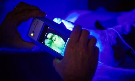 Handheld Fluorescence Imaging Wound Care Device Earns FDA Nod