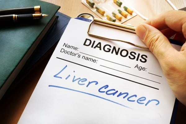Enhanced Ultrasound Imaging Beats CT, MR for Diagnosing Some Liver Cancers