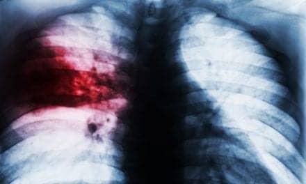RSNA Announces Pneumonia Detection Machine Learning Challenge