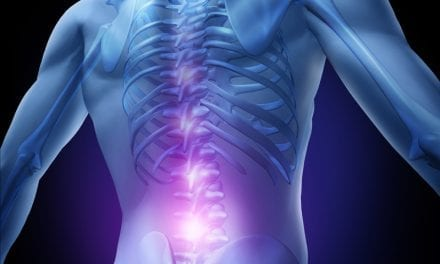 News from RSNA: Pulsed Radiofrequency Relieves Acute Back Pain and Sciatica