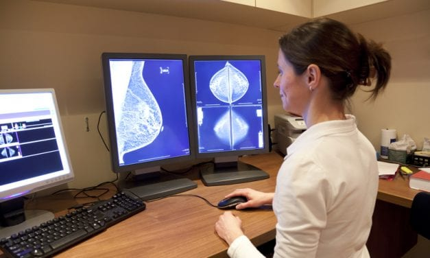 AI in Screening Mammography: Is the General Population Ready?