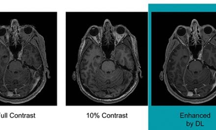 News from RSNA 2018: AI May Help Reduce Gadolinium Dose in MRI