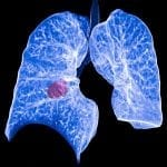 Median Technologies Releases iBiopsy Clinical Development Plan for Lung Cancer Screening
