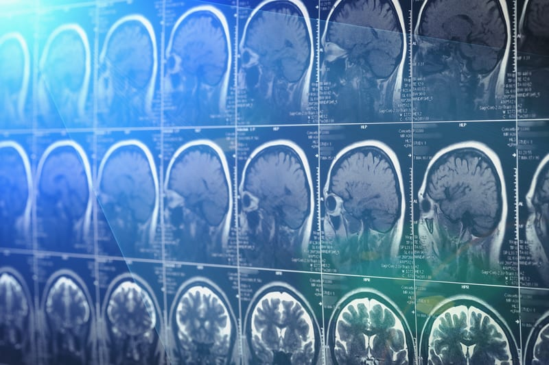 Wiring Diagram of Brain Provides Clearer Picture of Brain Scan Data