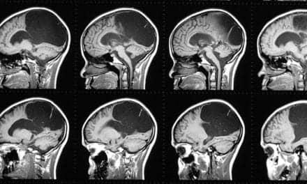 fMRI Reveals Anatomical Cause of Schizophrenia's Symptoms