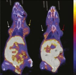 PET Agent Offers New Measurement Tool for Breast Cancer Therapy Efficacy