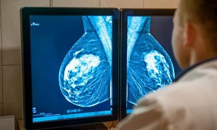 Early Mammography Screening Lowers Risk of Developing Fatal Breast Cancer