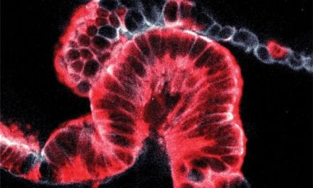 New 3D Imaging Technique Gives Insight into Origins of Pancreatic Cancer