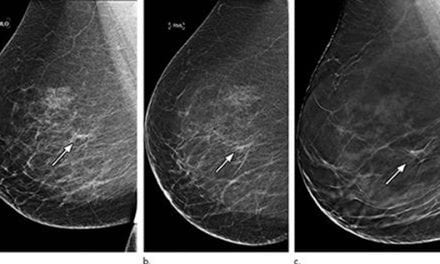 3D Mammography Significantly Reduces Breast Biopsy Rates