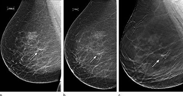 3d Mammography Significantly Reduces Breast Biopsy Rates Axis