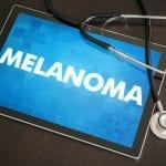 PET/CT Monitors Therapy Effectiveness for Melanoma Patients