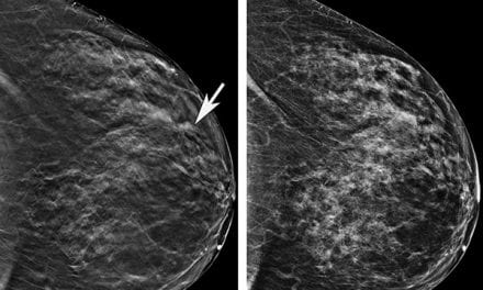 Older Women Benefit Significantly When Screened with 3D Mammography