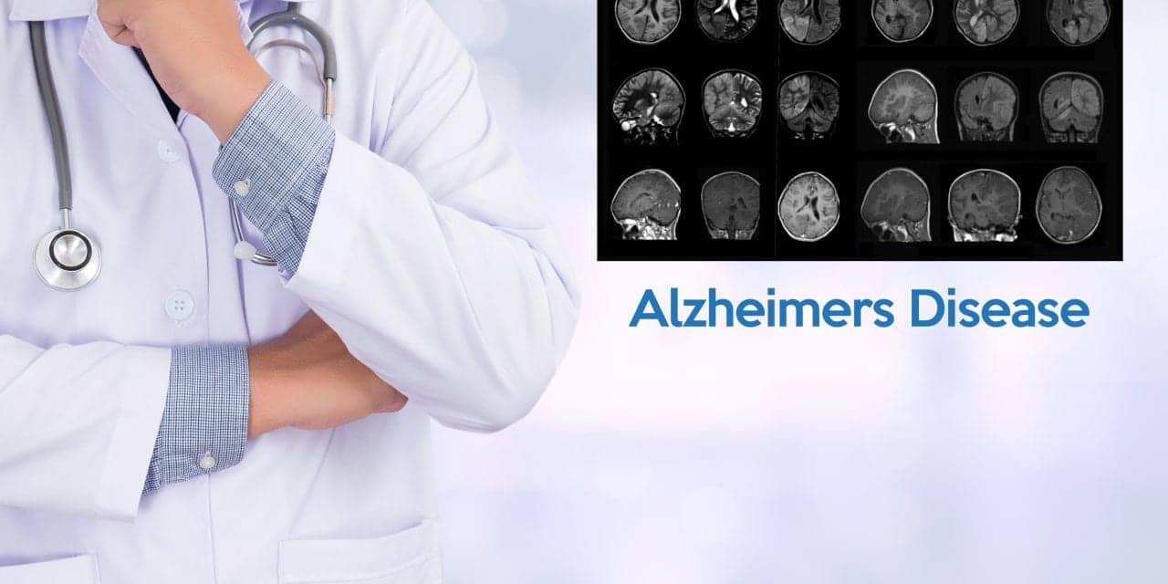 New Imaging Method Sheds Light on Alzheimer's Disease