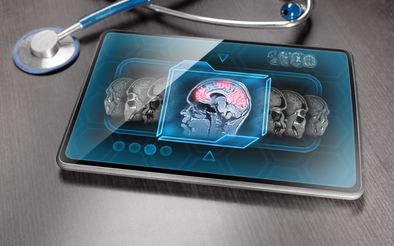 Brain Imaging Demonstrates Weaker Neural Suppression for Those with Autism