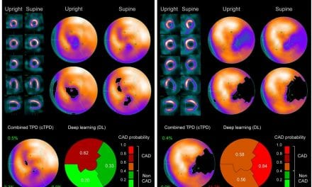SPECT MPI Deep Learning Analysis Helps Improve CAD Diagnosis