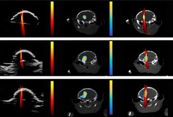 Ultrasound Can Monitor Exact Drug Dose Site in the Brain