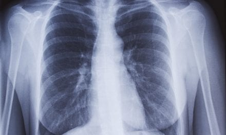 Chest X-rays Hold Information That Can Be Harvested with AI