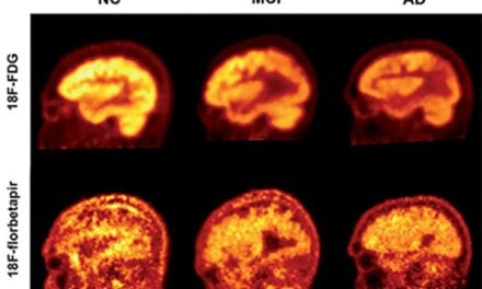 FDG-PET Found Effective at Evaluating Alzheimer's Severity