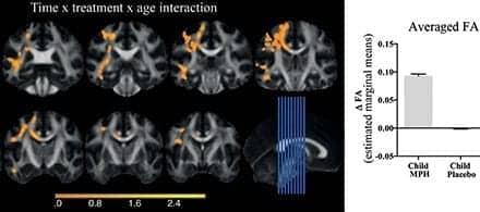 MRI Shows ADHD Medication May Affect Brain Development in Children