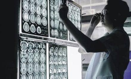 Advanced MRI Brain Scan May Help Predict Stroke-Related Dementia