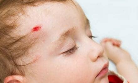 Fast MRI Offers CT Alternative for Pediatric Head Injuries