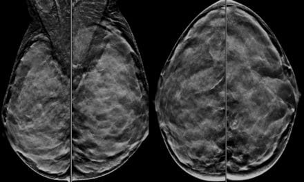 Dense Breast Tissue: Opportunities for Radiologists to Educate Patients and Providers