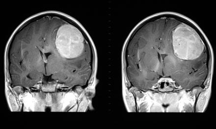 Peering into the Genome of a Brain Tumor