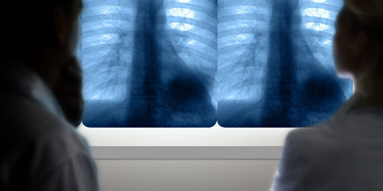 AI Helps Find Signs of Heart Disease on Lung Cancer Screens