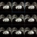 Radiomics Helps Researchers Predict 10-Year Breast Cancer Recurrence with MRI Scans