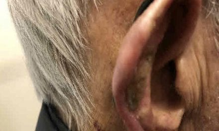 Brachytherapy Proves Effective in Treating Skin Cancer