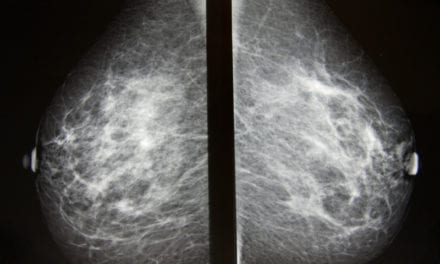 AI-assisted Radiologists Can Detect More Breast Cancers