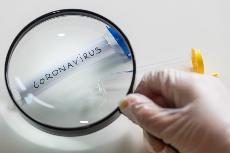 Radiologists Describe Coronavirus Imaging Features