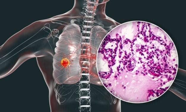 New Technology Lights Up Lung Cancer Cells