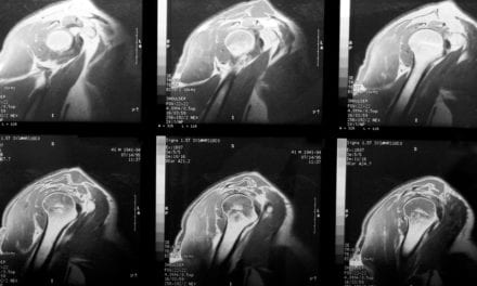 MRI Predicts Shoulder Stiffness for Rotator Cuff Tears